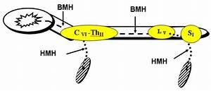 Схемы лечения артериальной гипертензии