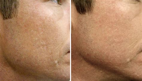 Collagen Induction Therapy (CIT) - CosMedical Skin