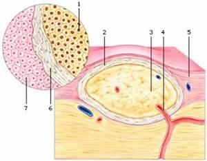 goedaardige tumor hersenen