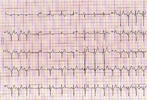 12-lead Ecg And Long Lead Ii