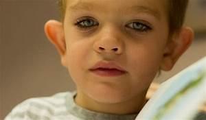 Síndrome x Frágil o Síndrome de Martin Bell