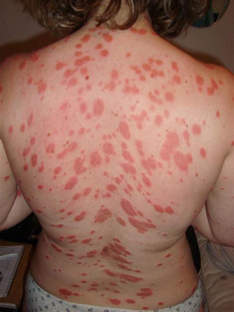 Tratamiento psoriasis guttata
