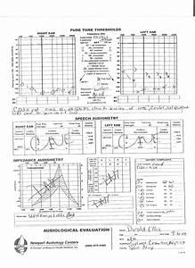 Doc 124 Gig 8 Doc 39 S Hearing Chart