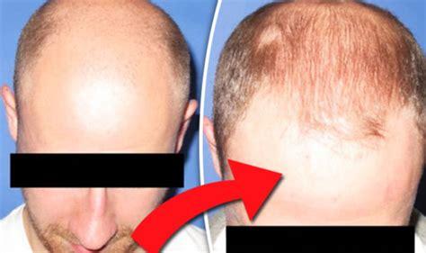 Hair Implants Springfield Co 81073 Princess Diana Kate Middleton Artist Creates Hyper