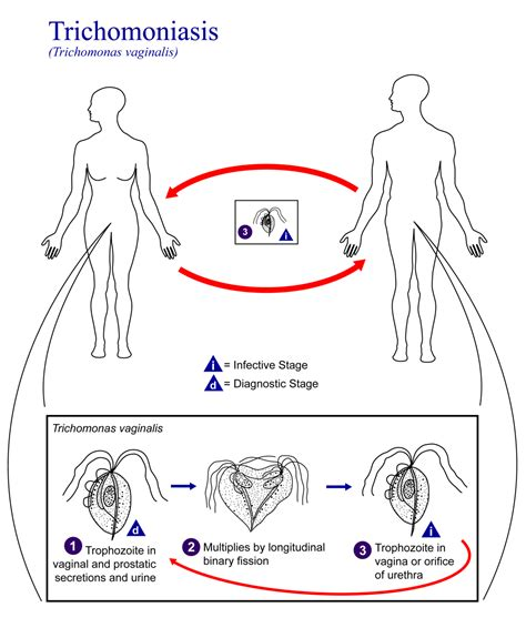 Trichomoniasis  Simple English Wikipedia, The Free. Transport Signs Of Stroke. Trademark Signs. Polycystic Ovary Syndrome Signs. Video Surveillance Signs. Violent Signs Of Stroke. Floor Signs Of Stroke. Cutlery Signs. 2nd Signs