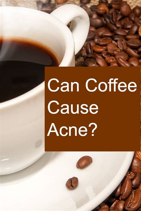 Is coffee good for skin? Can Coffee Cause Acne?