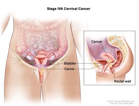 Cervical Cancer Treatment Pdqpatient Version