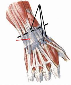 Health Professions 5061 > Sussman > Flashcards > extensor ...