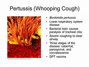 Microbial Diseases of the Respiratory System - ppt video ...