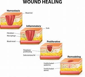 Body Diagram Wound Healing