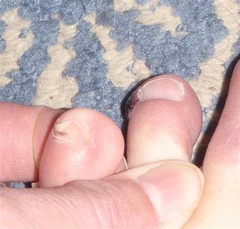 Blisters On Toes Related Keywords Blisters On Toes Long