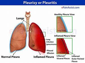 Biology 11  Topic 21  The Respiratory System