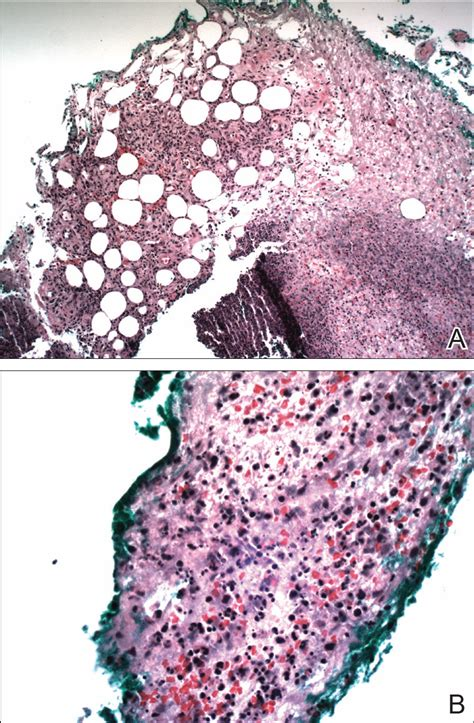 Sweet Syndrome With Aseptic Splenic Abscesses and Multiple ...