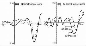 A  Grand Average Waveforms Representing The P50 Amplitude