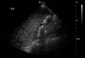 Gallbladder carcinoma | Radiology Case | Radiopaedia.org