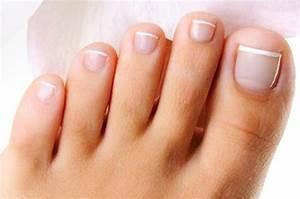 Грибок ногтей на ногах у детей фото лечение симптомы у детей