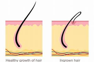 Ingrown Hair   Overview  Symptoms  Causes   U0026 Proven