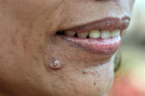 acne  face skin problem woman applying acne cream