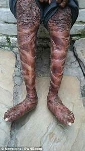 The Human Snake  Girl  16  Sheds Her Skin Every Six Weeks