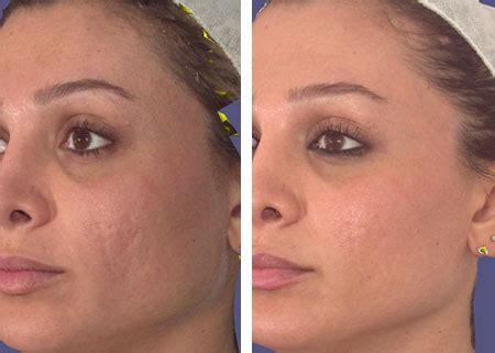 Lasers — Phillips Aesthetic Dermatology