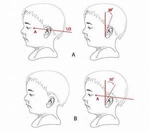 Ear Anotomy