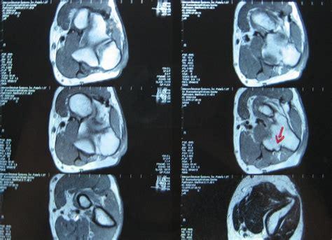 mrt kernspintomographie knie ablauf kosten