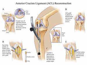 Anterior Cruciate Ligament  Acl  Reconstruction