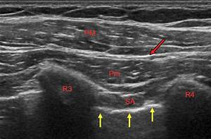 Ultrasound Image Of The Pecs 2 Block  The Ultrasound Probe Is Placed In