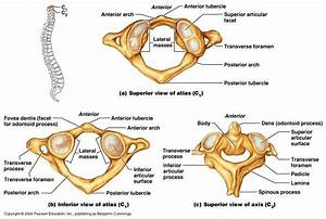 Pictures Of Axis Vertebra  Odontoid Process