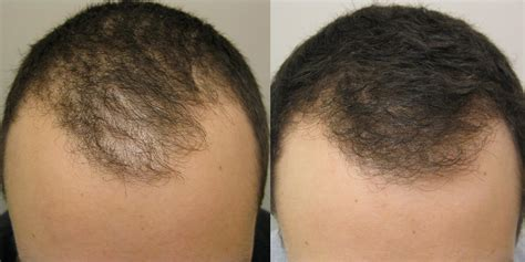 Propecia Shedding 6 Months by Propecia Before And After Photos Dr Rogers New Orleans