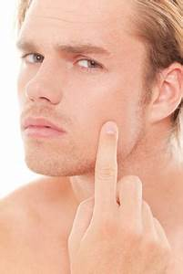 Acne Treatment for Adult Men by Exposed Skin Care - The ...