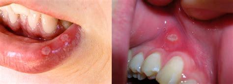 herpes buccal interieur bouche ulc 232 re aphte encyclopedie medicale