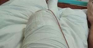 Koleno po artroskopii