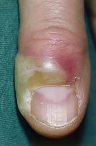 Acute Paronychia - Dermatologic Disorders - Merck Manuals ...