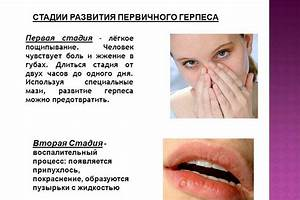 Псориаз причины появления и лечение