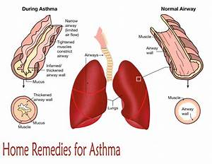 10 Home Remedies for Asthma - Webjazba | Science ...