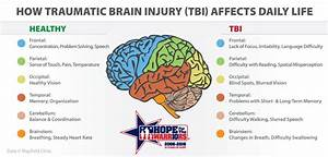 The Truth About Traumatic Brain Injuries