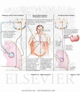 Obesity U0026 39 S Effect On The Respiratory System