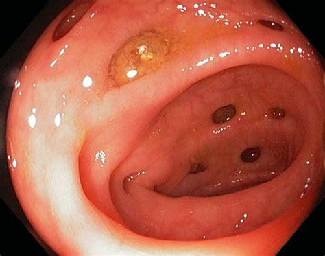 Salud Siglo Xxi El Estreimiento Y La Diarrea Viii
