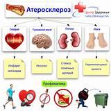 Атеросклероз нижних конечностей сахарный диабет лечение