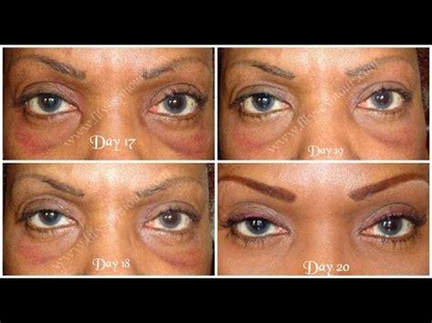 part  hooded eyelid surgery blepharoplasty day