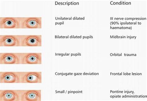 Ophthalmology Emcage