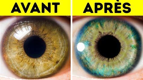 Changer la couleur de ses yeux grâce à la chirurgie attention danger Femme Actuelle Le MAG