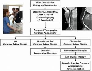 Ct Coronary Angiographic Evaluation Of Suspected Anginal