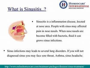 Sphenoid Sinus Retention Cyst Symptoms