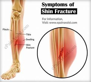 Shin Fracture or Fracture of Tibia|Causes, Symptoms, Types ...