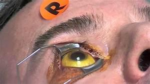Eye Injection