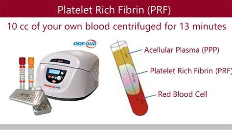 K ´ x ® y. PRF (Stem Cells) - Aria Dental   Mission Viejo CA