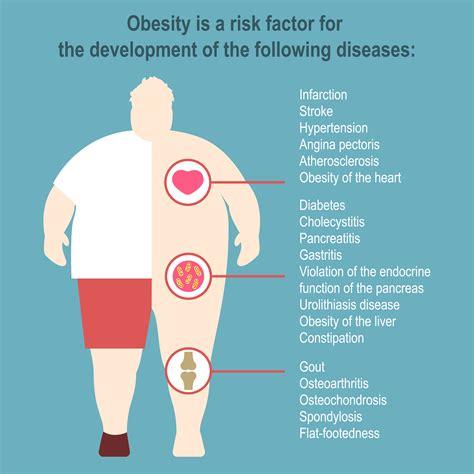 obesity market  year  review drg blog drg