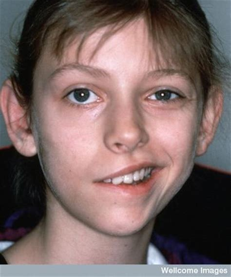 Lyme disease and bell's palsy